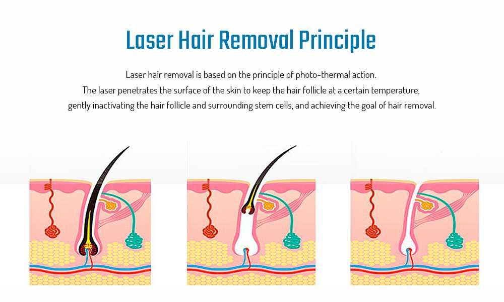 MY - 006 IPL Photon Pulse Hair Removal Electric Lady Epilator
